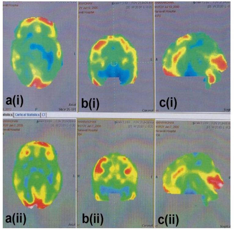 幹細胞の投与前後を比較した脳のCTスキャン