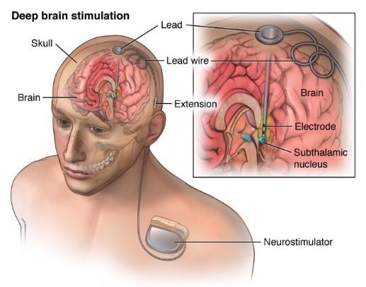 脳深部刺激療法
