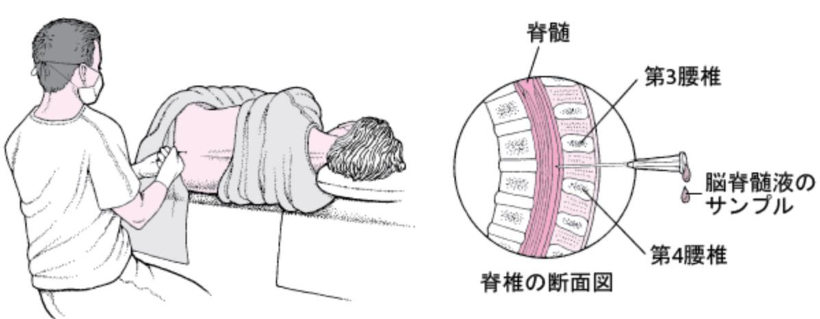 脊髄穿刺方法
