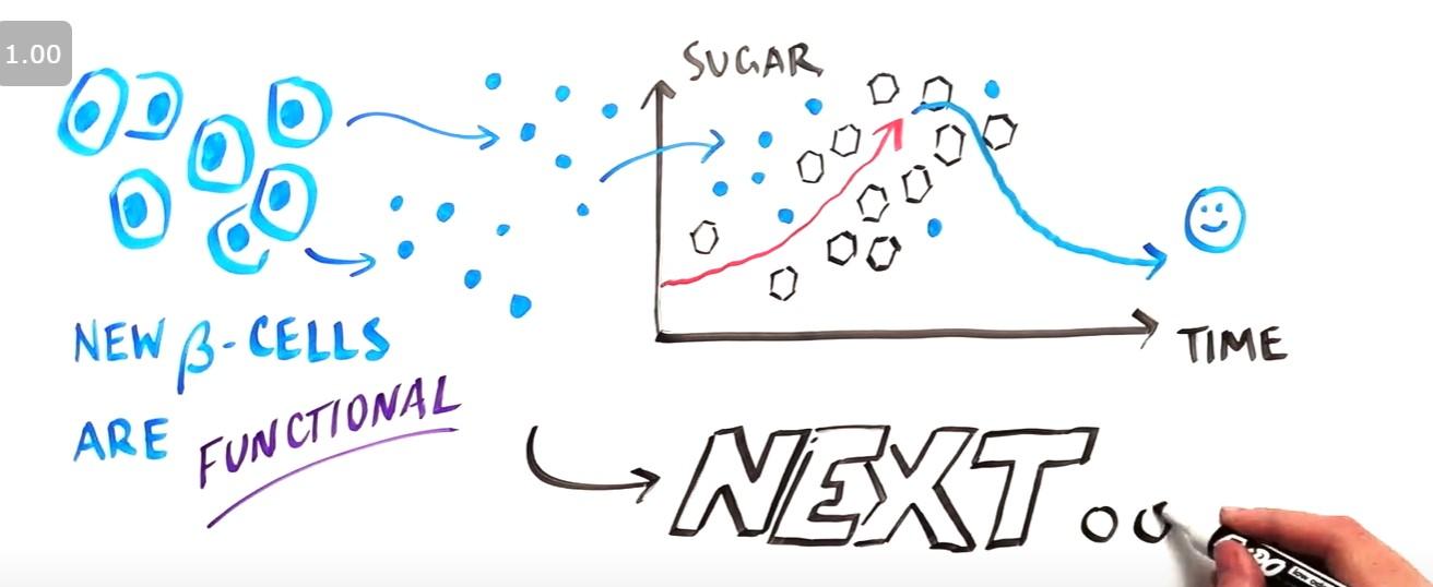 糖尿病の幹細胞治療