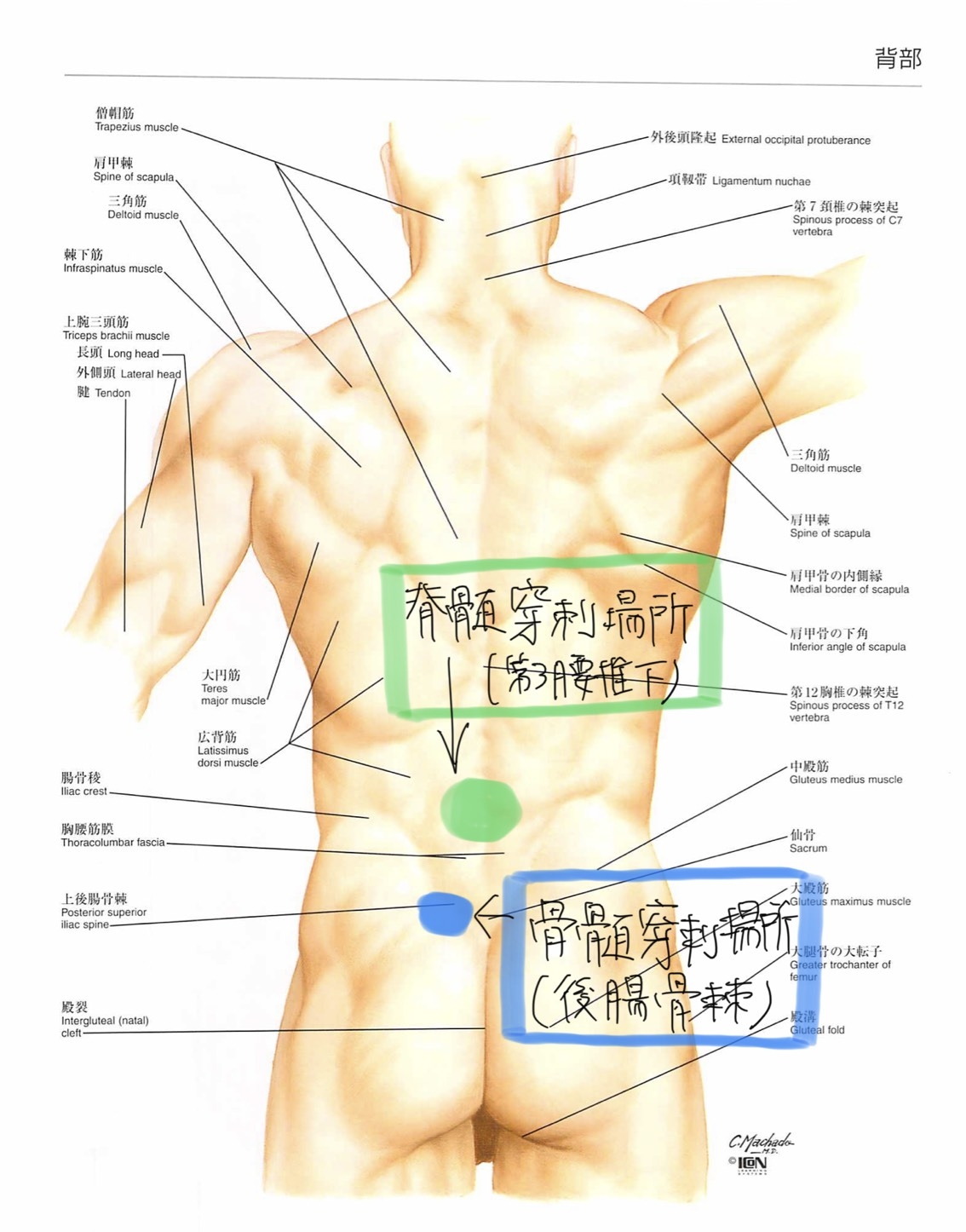 骨髄穿刺と脊髄穿刺の穿刺場所の違い